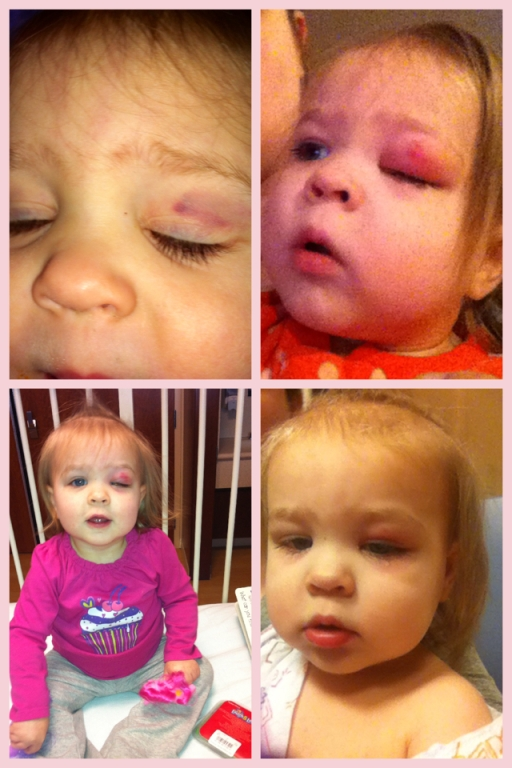 From top left to bottom right: Tuesday morning (after hitting her eye Monday), Friday morning (at home), Friday afternoon (at hospital), Saturday morning (at hospital).